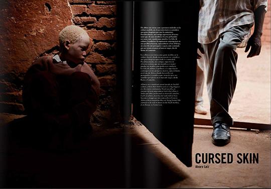 Cursed Skin by Alvaro Laiz publicada en la revista de fotografia documental PIEL de FOTO